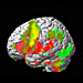 Brain Damage Increases 'Spirituality'